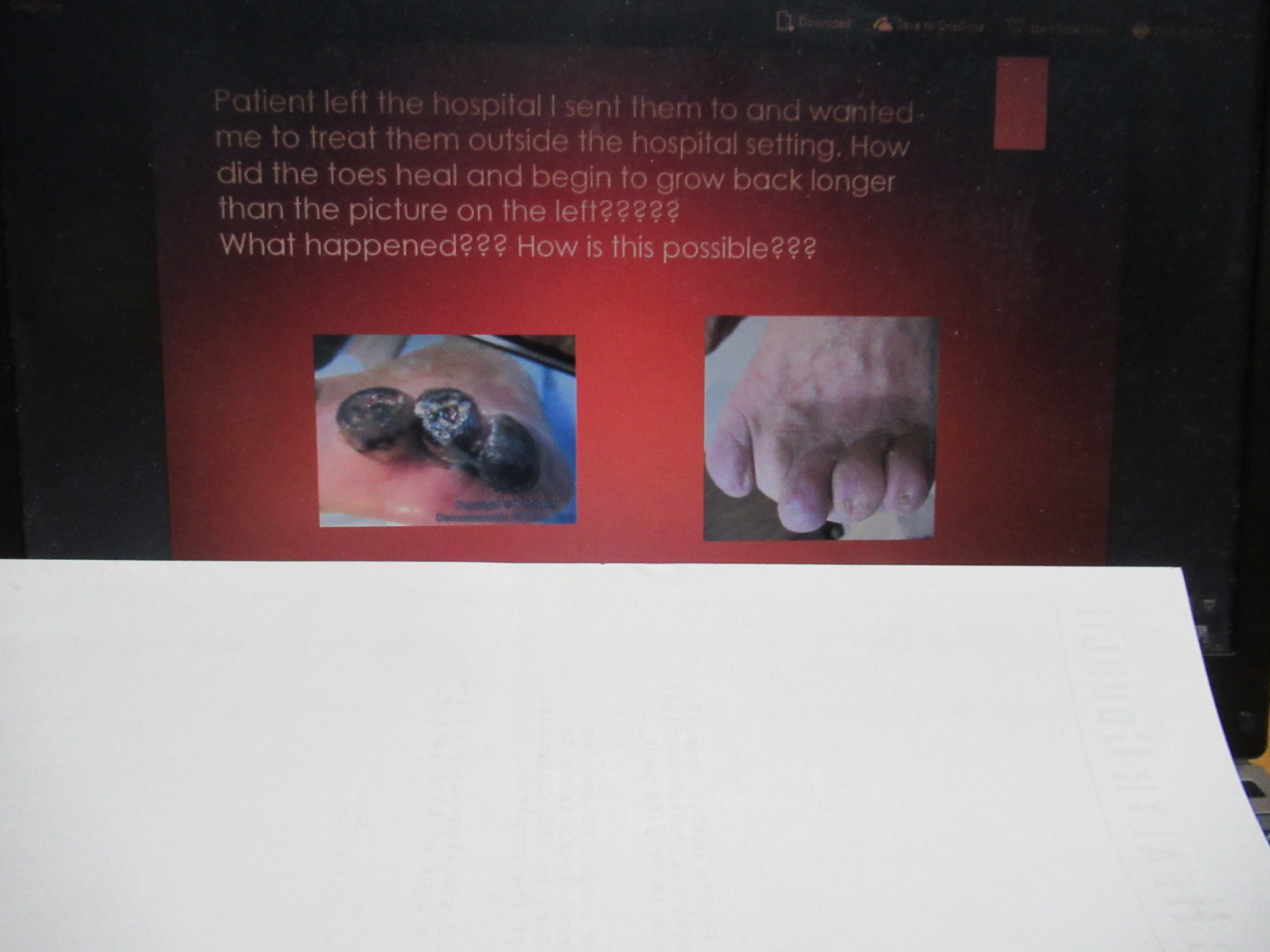 Gangrenous toes can heal and begin to regrow