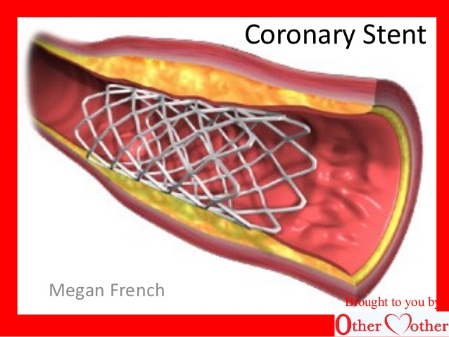 Coronary Stents Market Size, Share, trends, and Forecast to 2027