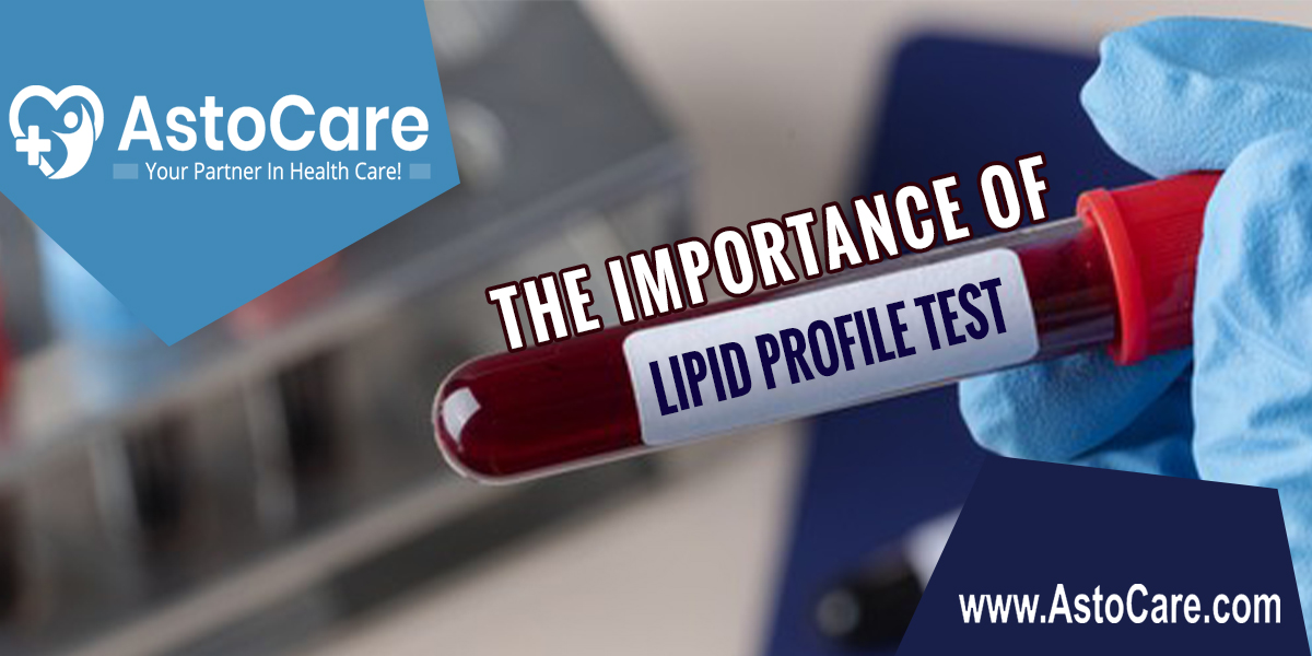 The Importance of Lipid Profile Test