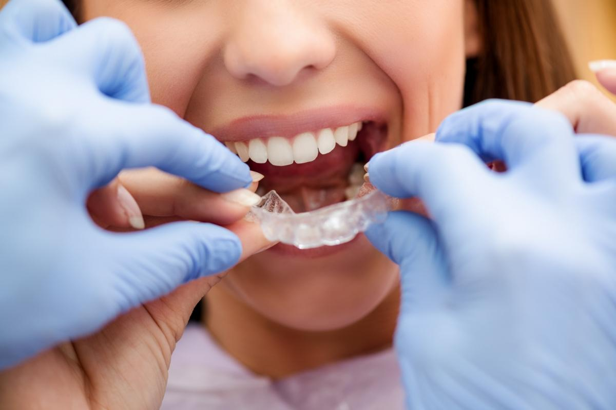 Shelbourne Dental Clinic - Family Dentistry Where Patients Come First